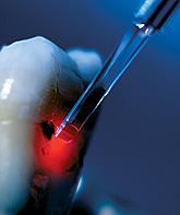 laser gerät medizin